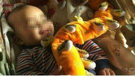 Valentino, el bebe de ocho meses internado