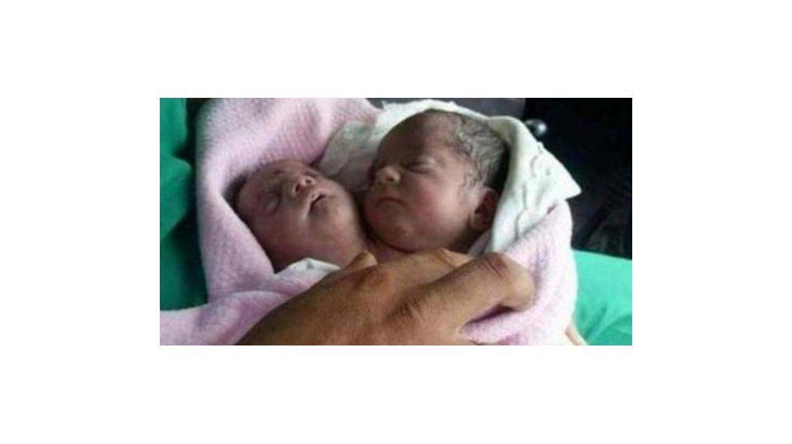 Nació un bebé con dos cabezas en Siria