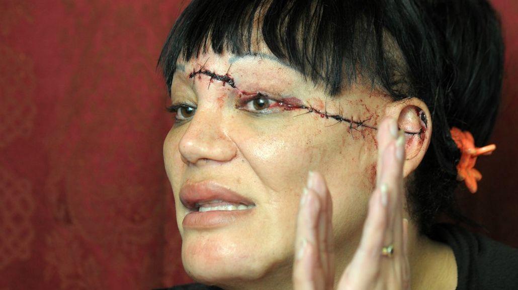 Aldana fue brutalmente atacada. Gentileza: La Nueva