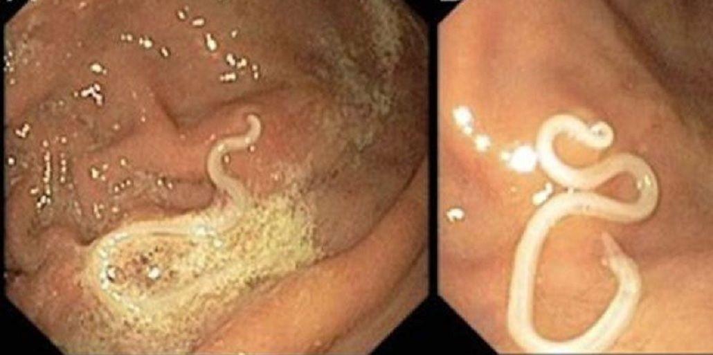 Las larvas del parásito Anisakis