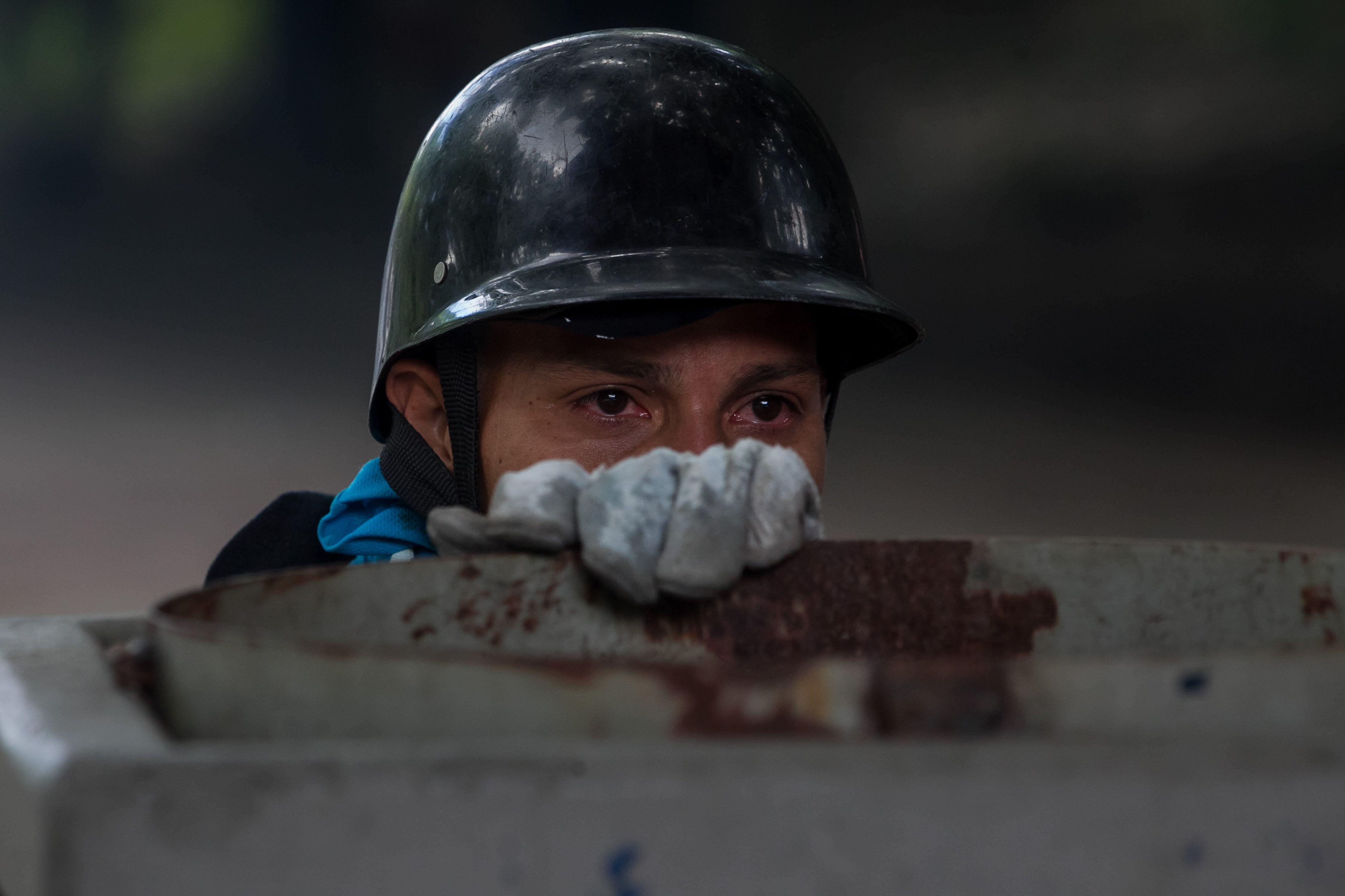 Joven afectado por gases lacrimógenos