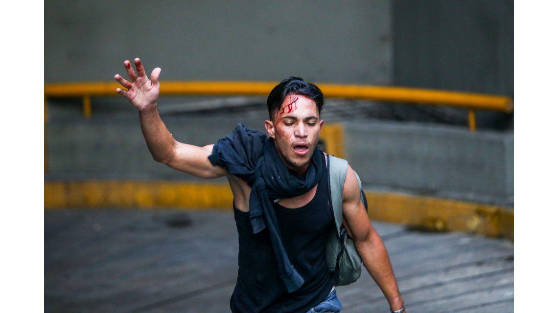 Un joven resultó herido en las protestas contra el gobierno de Nicolás Maduro