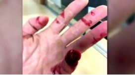 Un policía perdió un dedo por un mordisco durante una detención