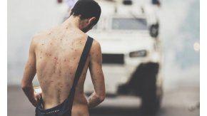 Manifestante desnudo en una autopista de Caracas se viralizó