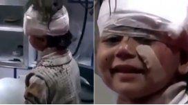 La sonrisa de la nena herida en Alepo