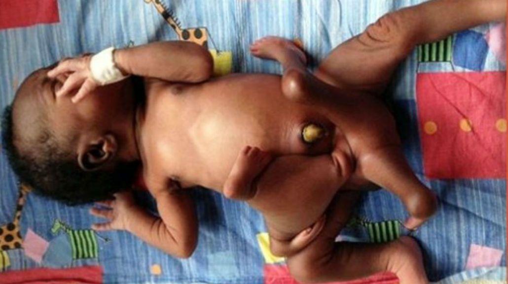 Con cuatro brazos y cuatro piernas: así estaba Karam apenas nació