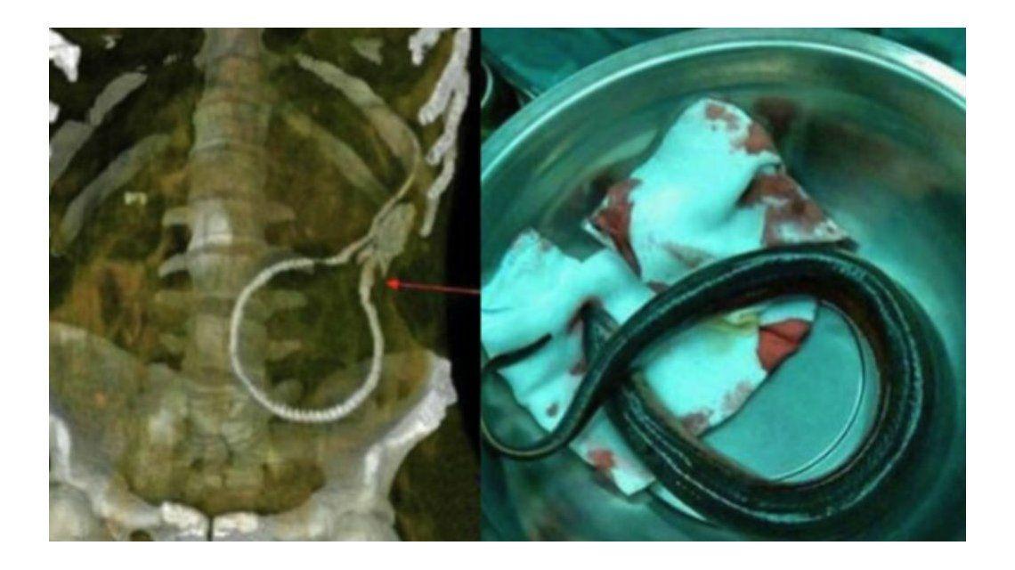Así estaba la anguila en el cuerpo del hombre