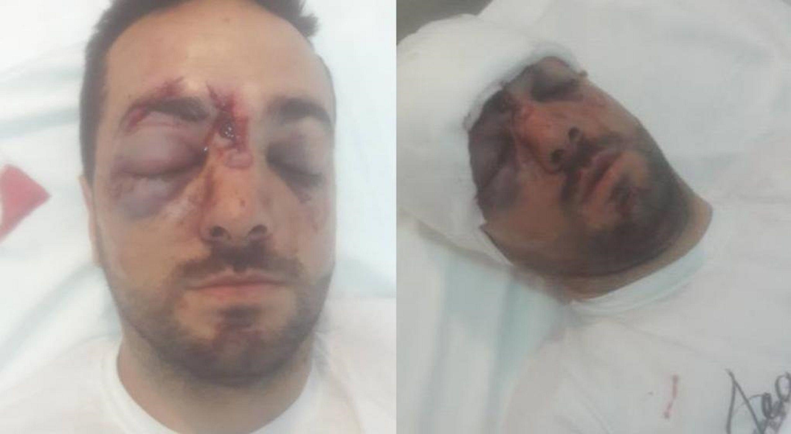 Lo golpearon con un palo en la cabeza para robarle la moto