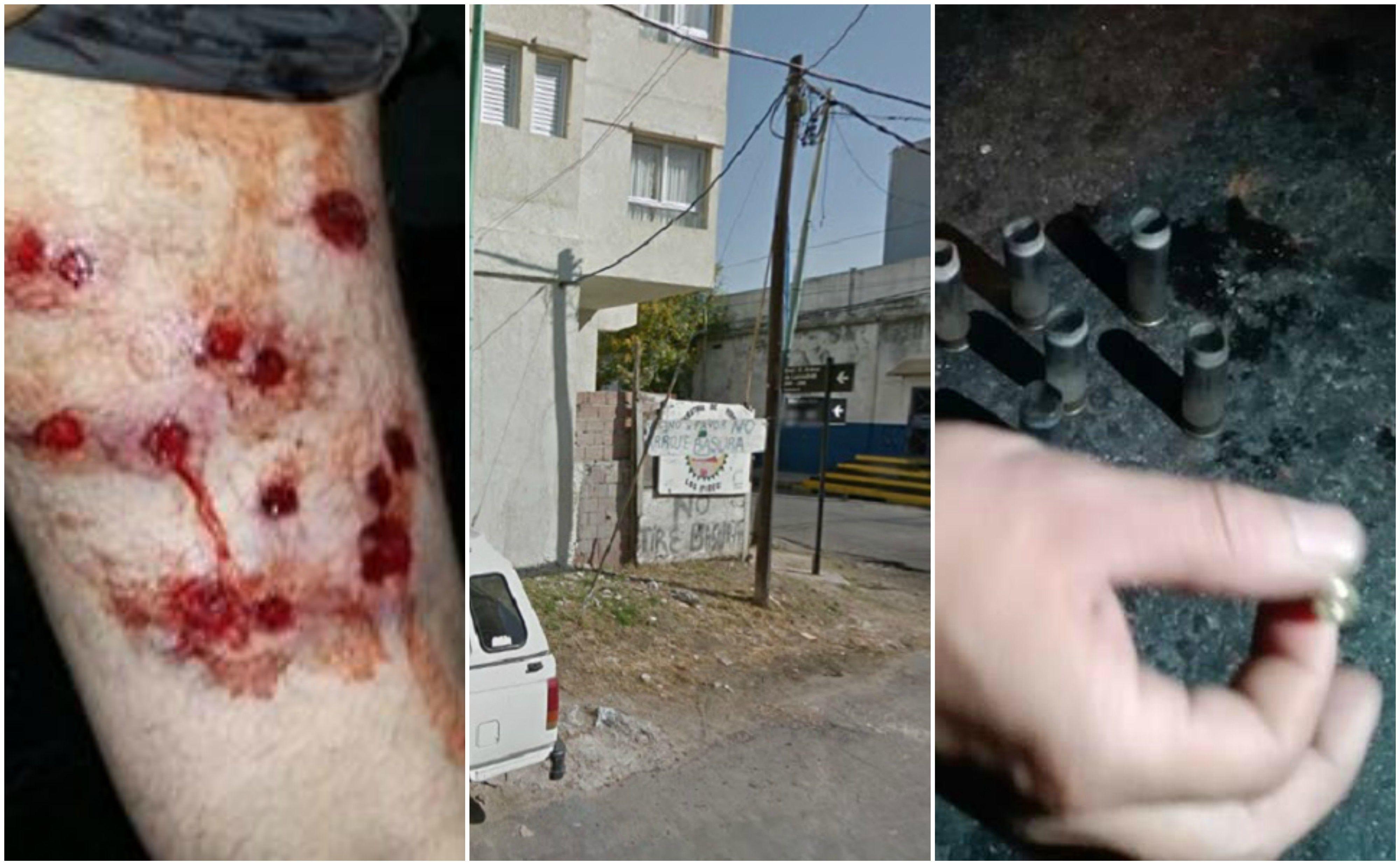 Dos mujeres baleadas en el barrio de La Boca