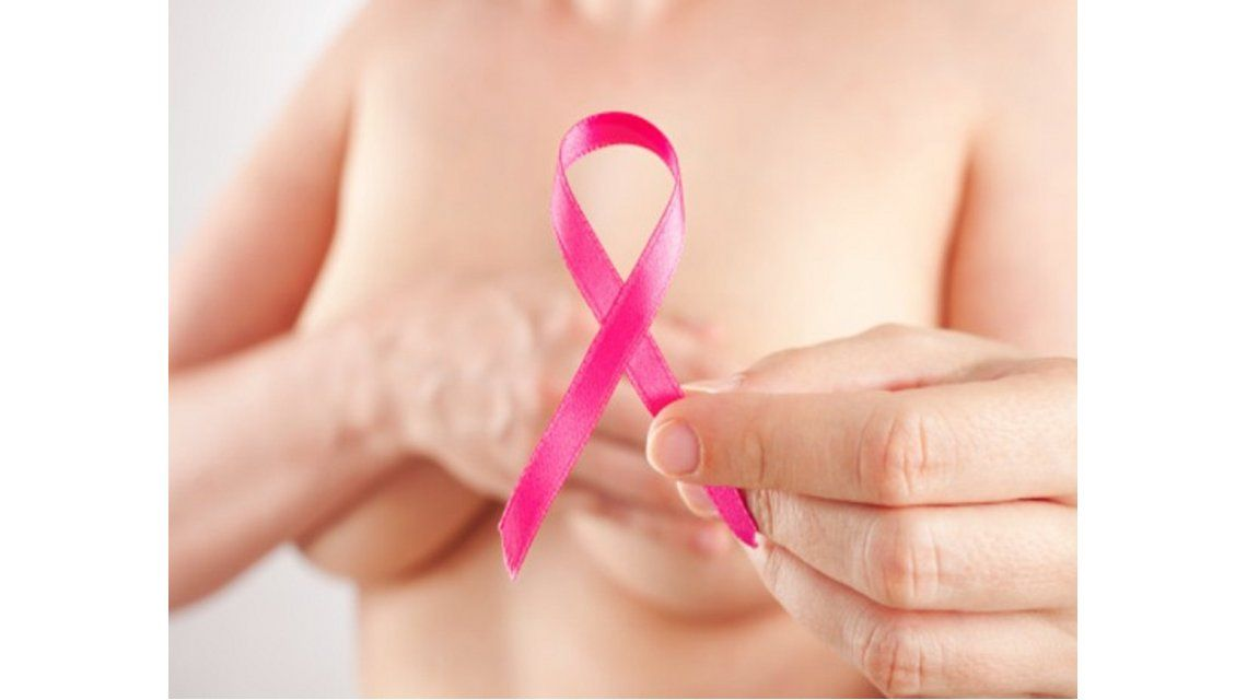 El 90% de los casos de cáncer de mama