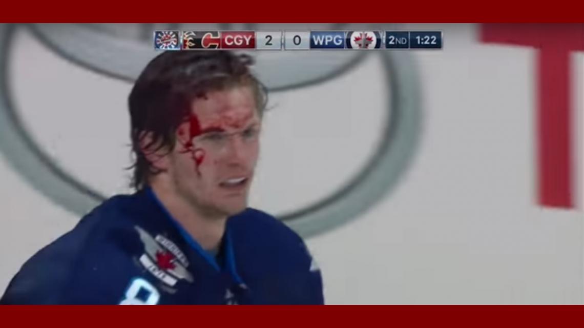 Una pelea en un partido de hockey sobre hielo terminó mal