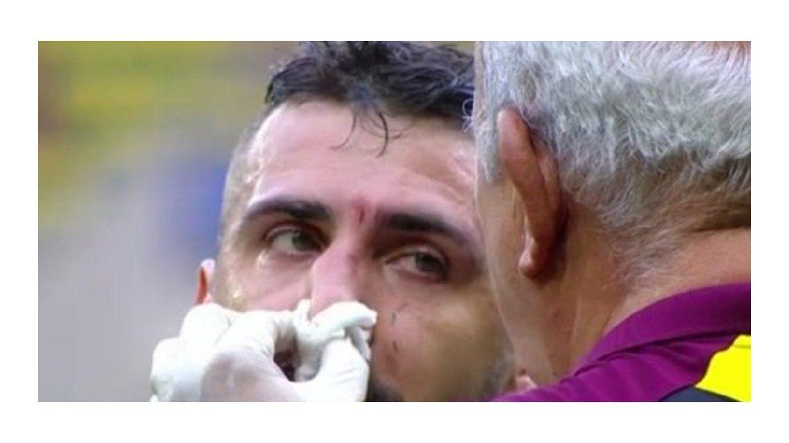 El ex delantero de Vélez podría jugar con una máscara