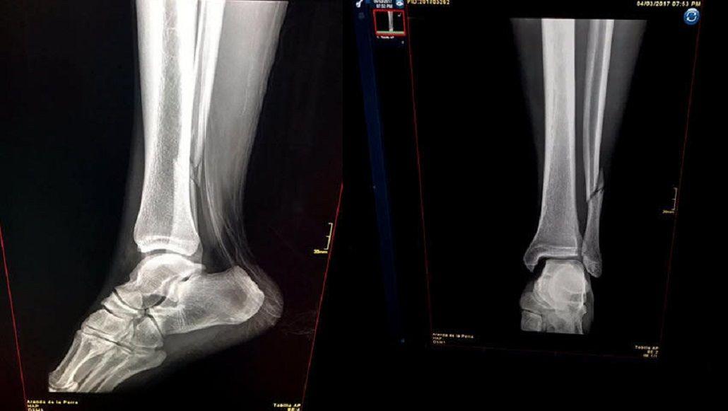 Radiografía de la lesión de Renato Ibarra