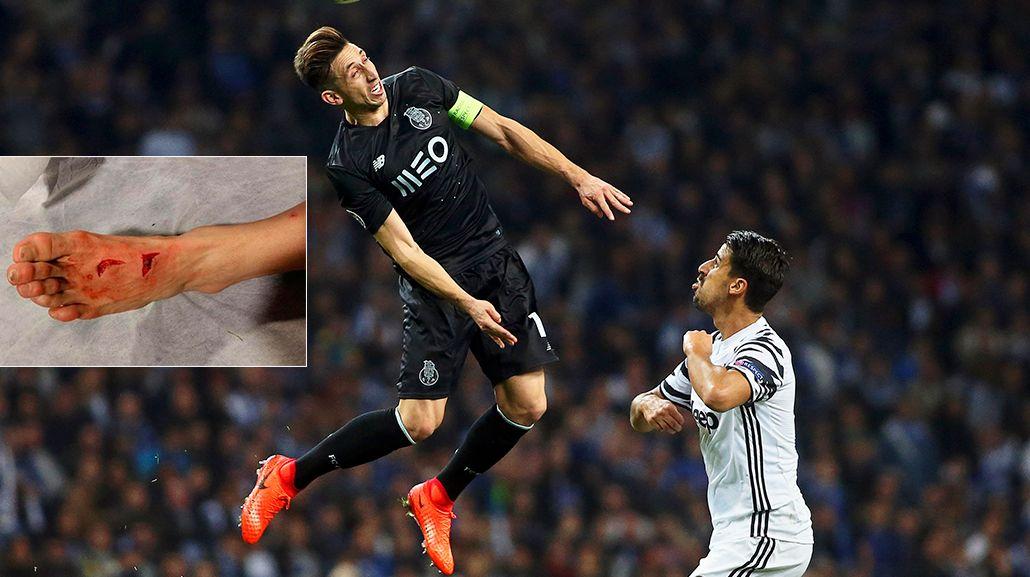 Herrera siguió jugando pese a las terribles heridas