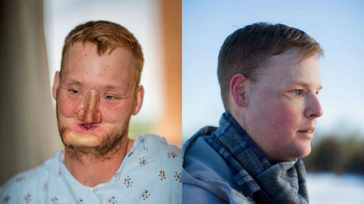 Antes y después de Andy Sandness