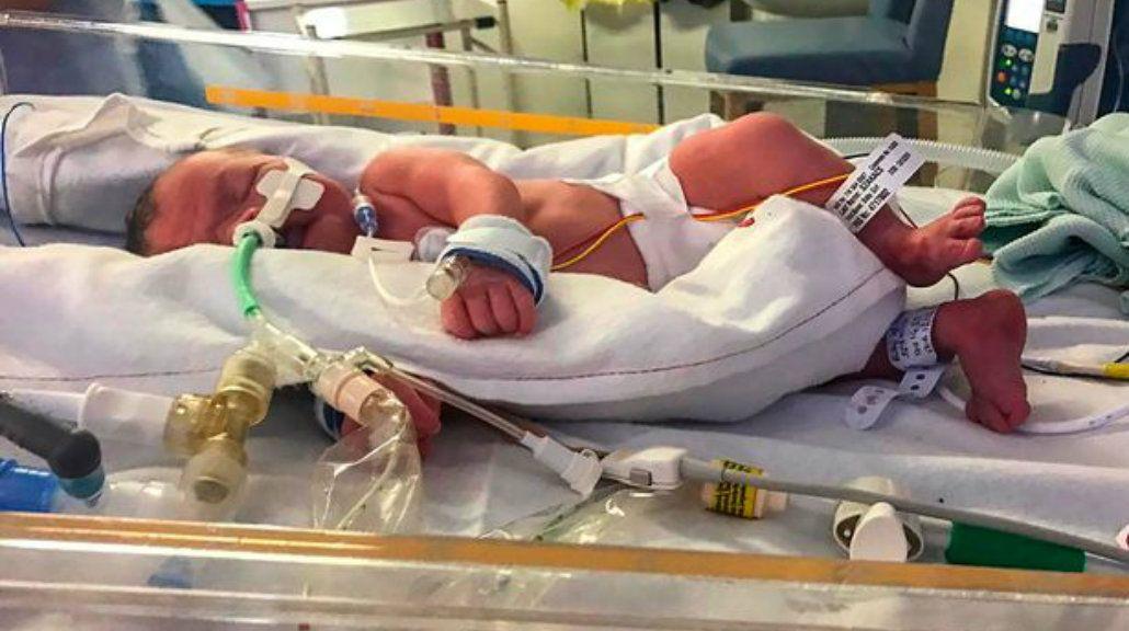 Evlyn nació con severas complicaciones