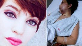 Así quedó Belén luego del brutal ataque del anestesista