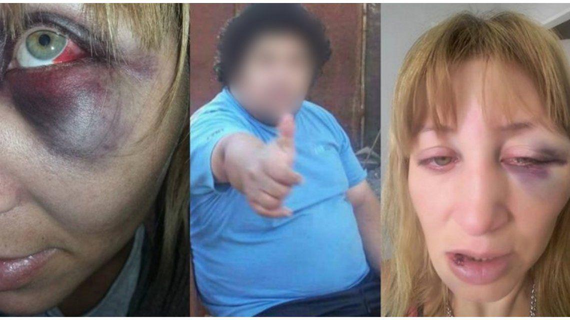 Su ex la gatilló dos veces