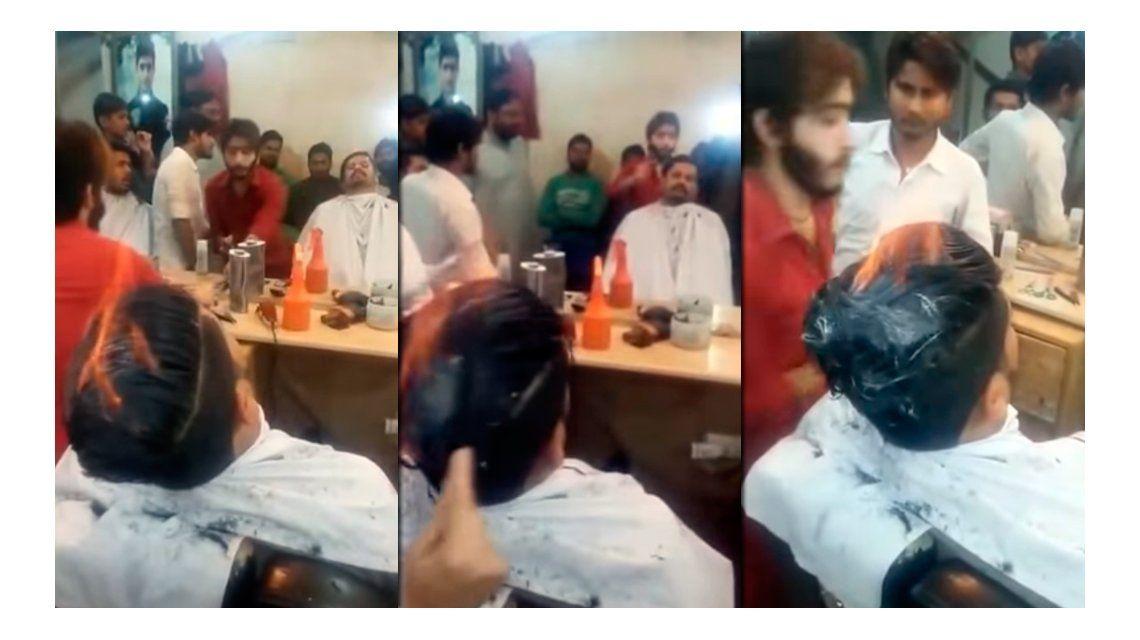 Le cortan el pelo prendiéndoselo fuego