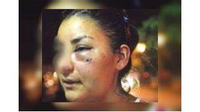 Un boxeador golpeó a su ex mujer