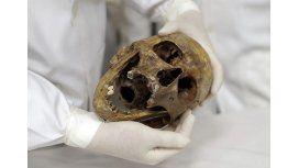 Usan los restos del nazi Mengele para estudiar medicina - Crédito: AP