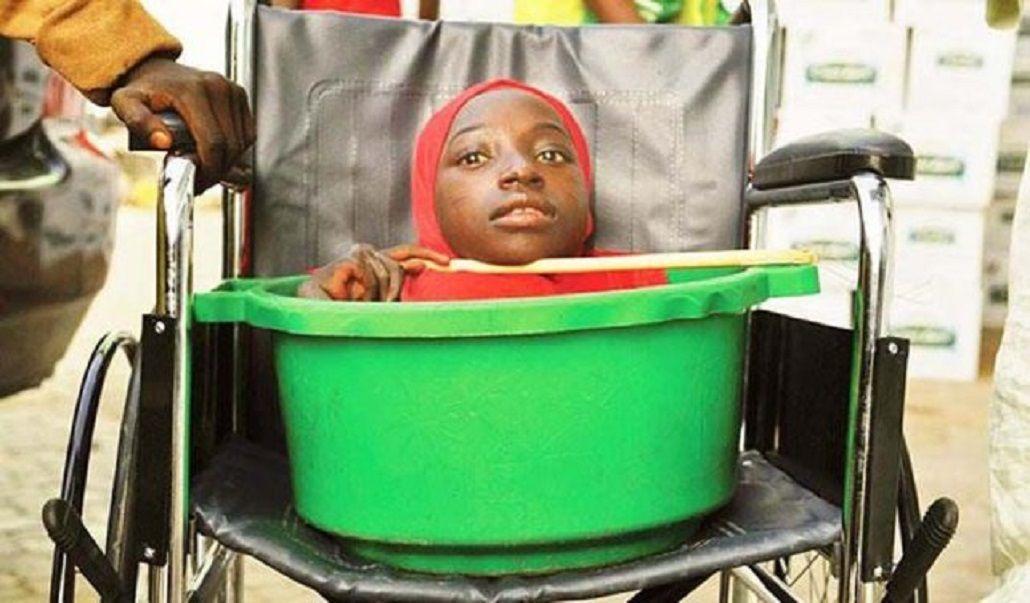 Rahma Harunala joven sin cuerpo que vivía en un balde