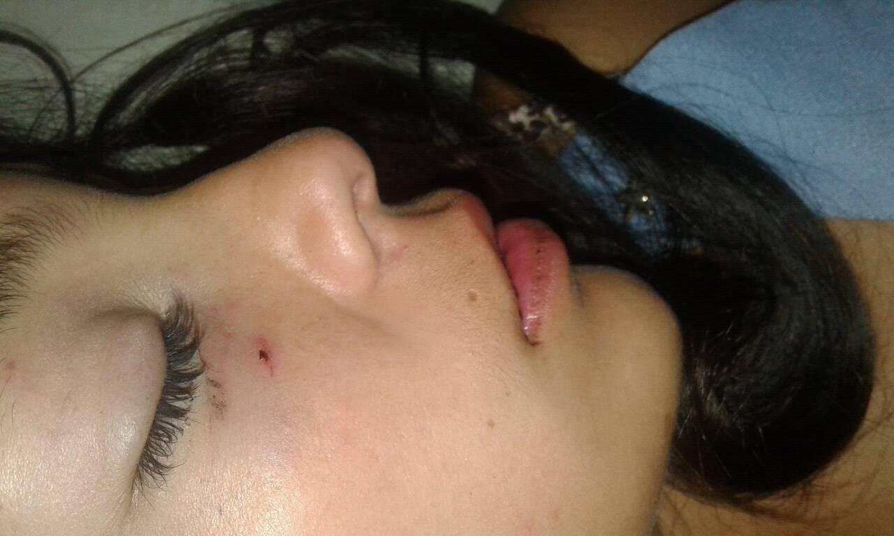 Una joven denunció que su ex la desmayó a piñas