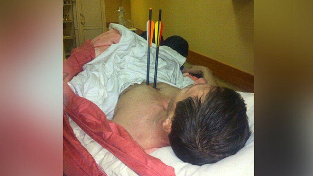 Un hombre se clavó dos flechas en su cuerpo y sobrevivió.