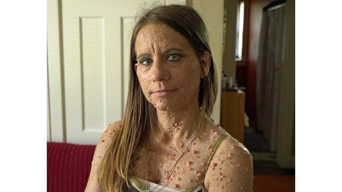 Una mujer sufre de una rara condición que le cubrió el cuerpo de más de 6.000 tumores