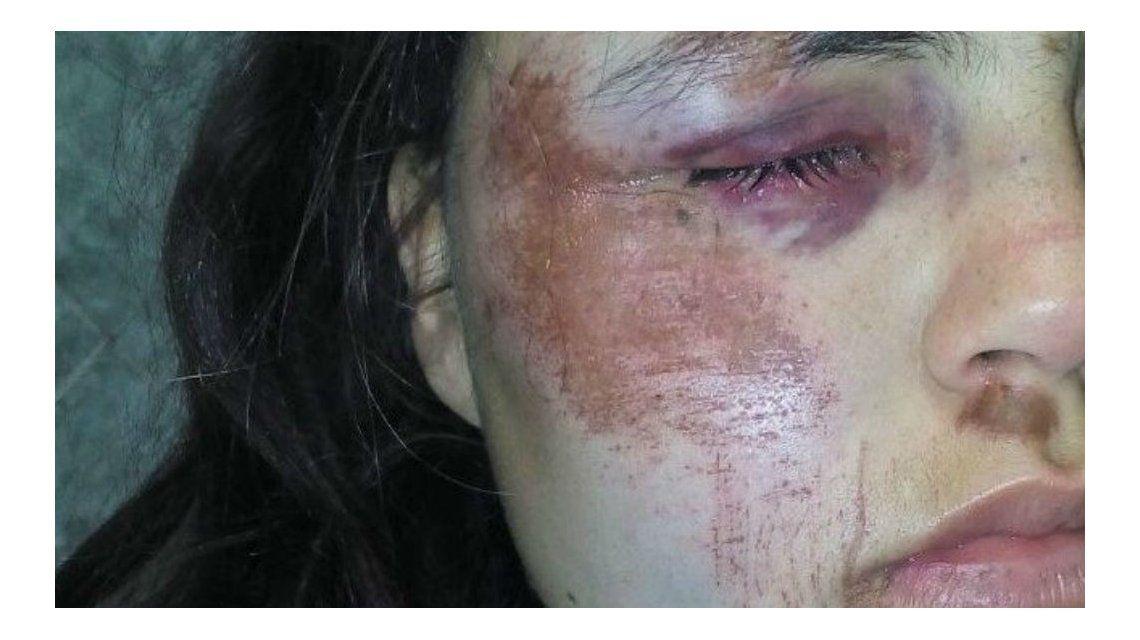 Así quedó Marianela Amarian tras la brutal golpiza