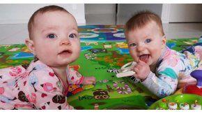 Charlotte y Olivia son las mellizas que fueron gestadas en el inédito embarazo