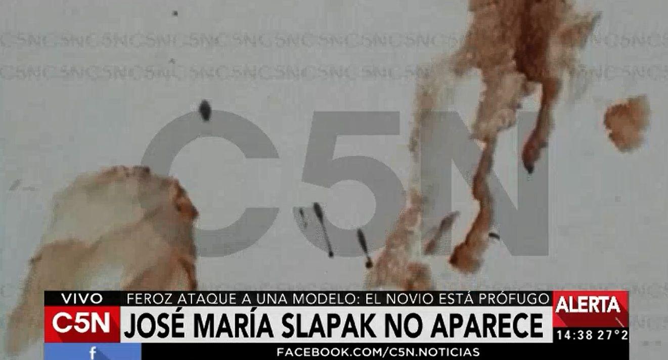 Verónica Notagay aún  permanece internada tras ser apuñalada por su novio en un departamento de Recoleta.