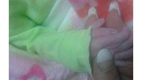 Una beba nació en Tucumán con seis dedos en su mano derecha.