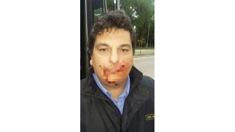 Walter Lipari se llama el colectivero de la línea 203 agredido a machetazos