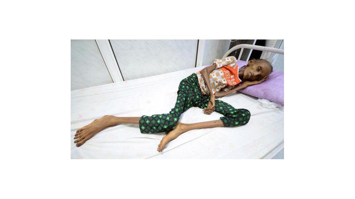 Saida Ahmad Baghili internada en un hospital de Yemen con desnutrición aguda