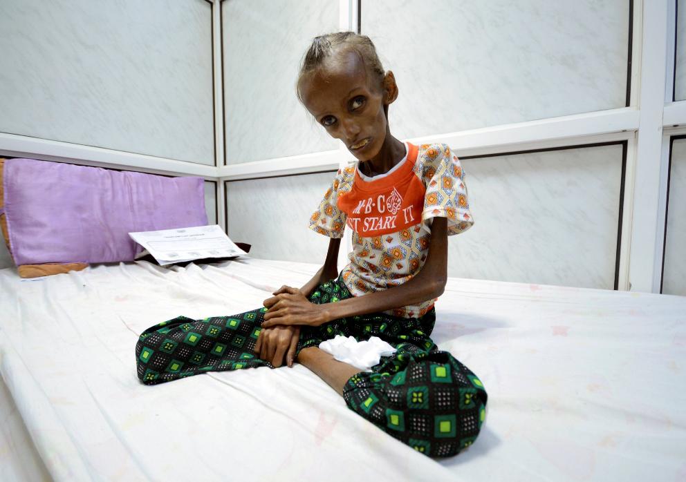 Saida Ahmad Baghili sufre desnutrición aguda con 18 años de edad