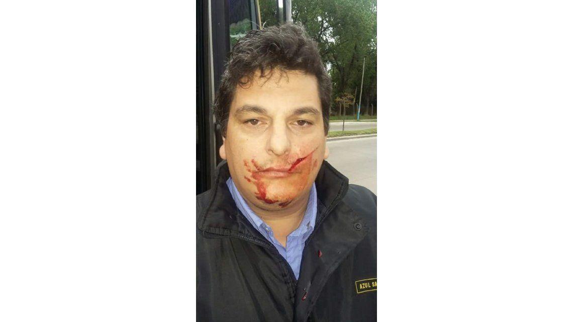 Colectivero de la línea 203 agredido con un machete (imagen sin censurar)