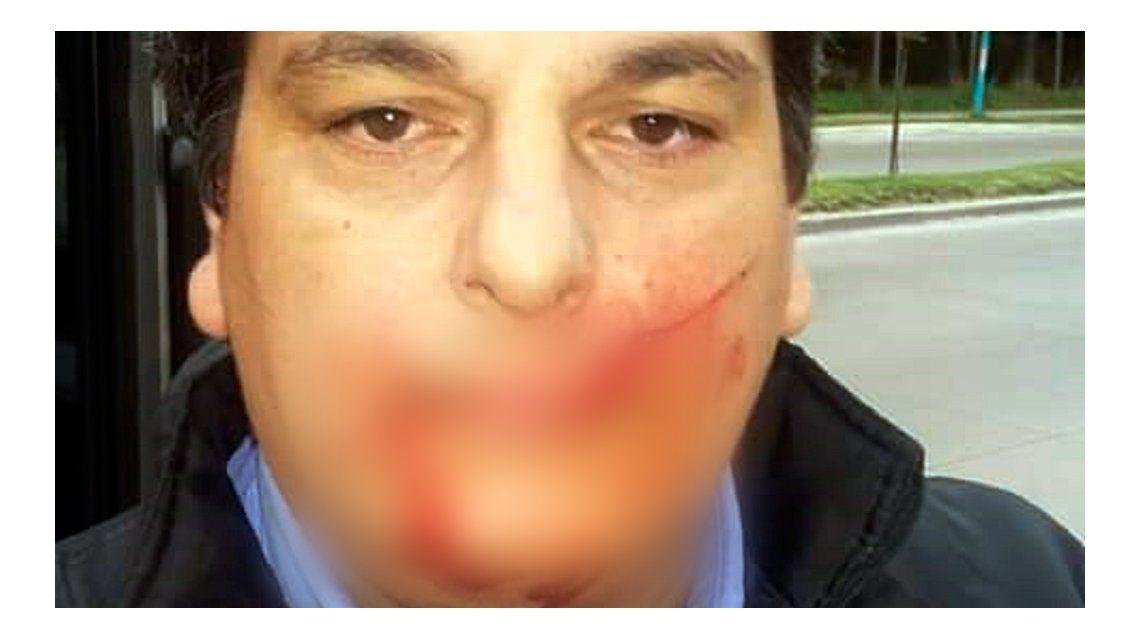 Colectivero de la línea 203 agredido con un machete (imagen censurada)