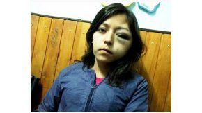 Mariana Arabena fue atacada por Alejandro Patricio Santarrosa