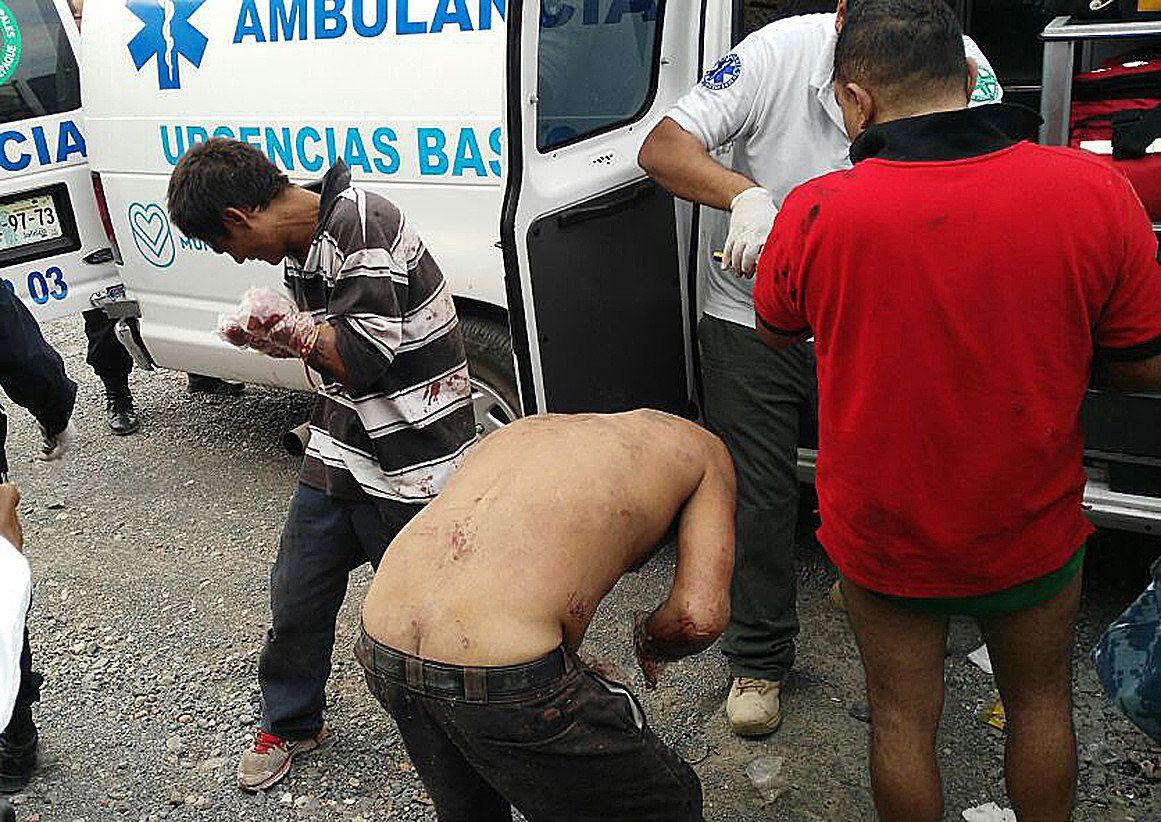 Siete presuntos ladrones fueron abandonados con las manos mutiladas en  Tlaquepaque.