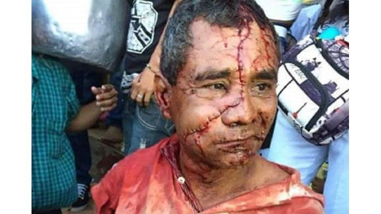 Un hombre recibió 50 puntos de sutura en su rostro después de ser atacado por un toro