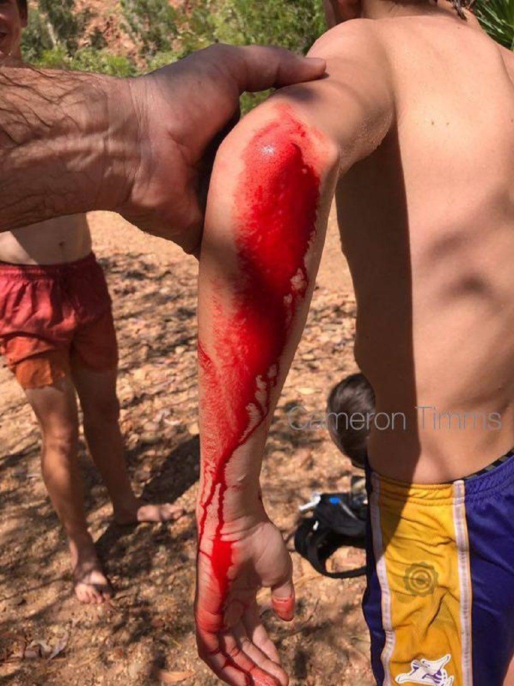 Un adolescente es atacado por un cocodrilo
