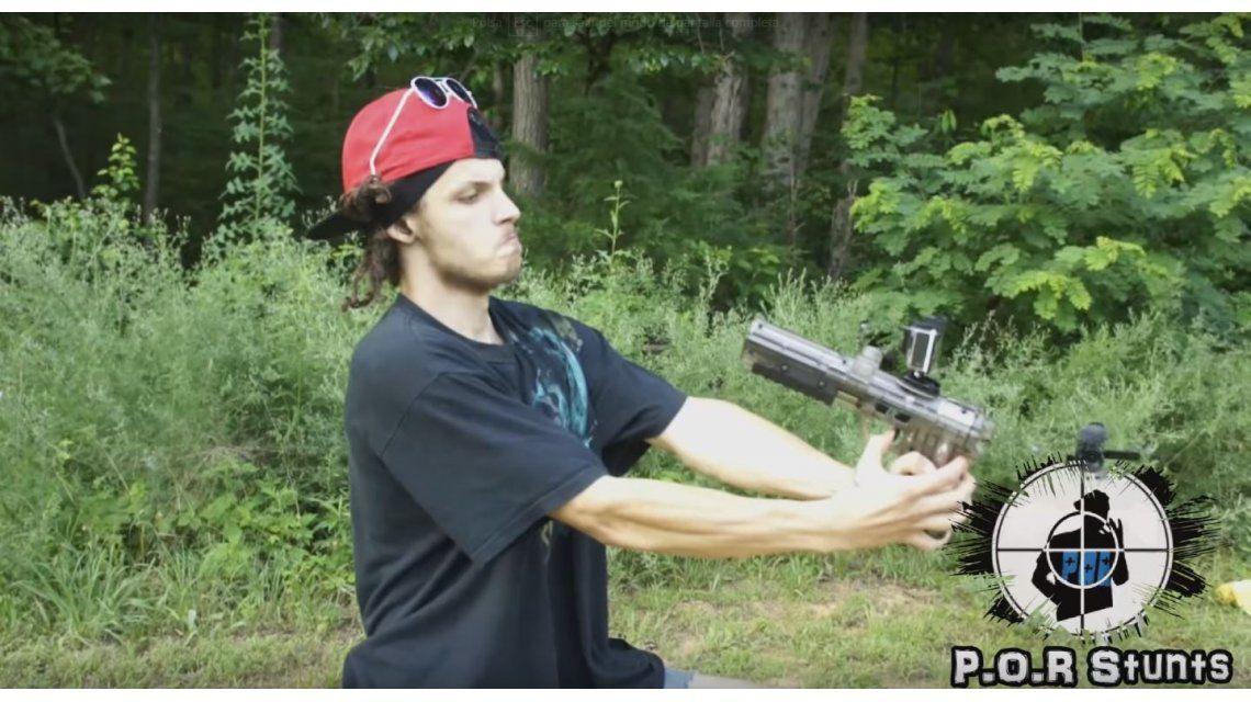 Se disparó en la cara con una pistola de paintball