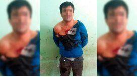 El hombre fue derivado al hospital local con varias mordeduras