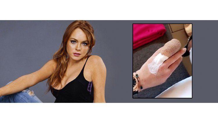 Lindsay Lohan tuvo un accidente en un barco.