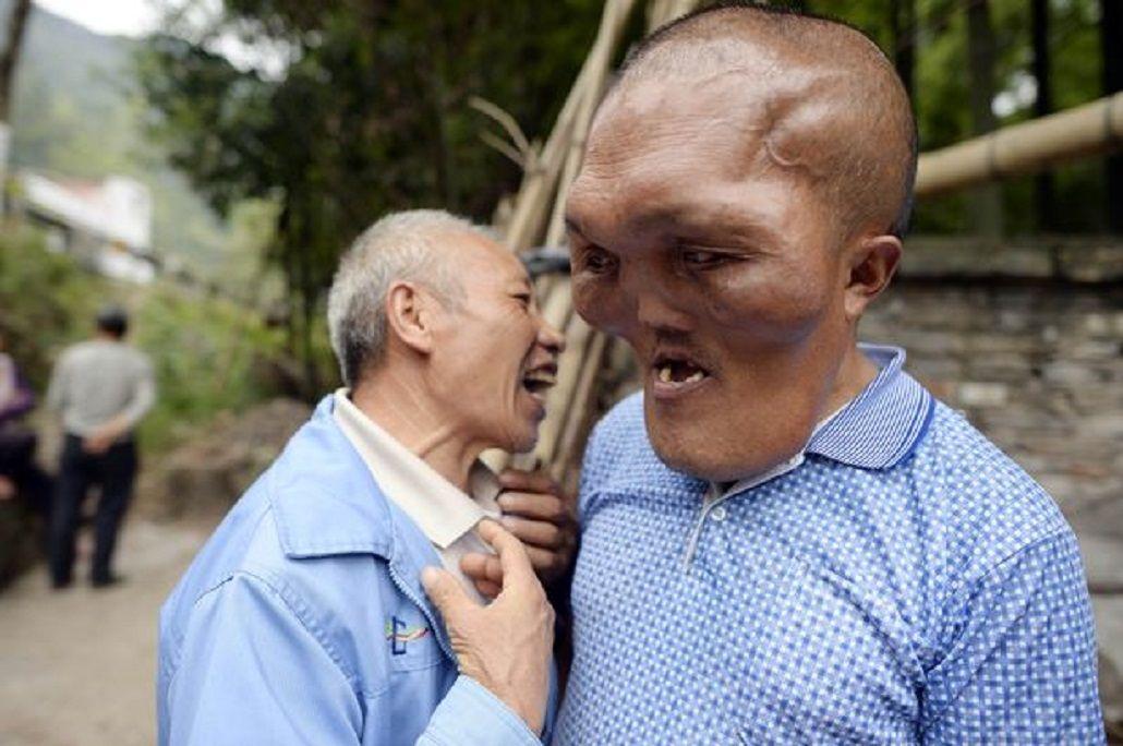 XiaYuanhai sufrehiperplasia facial