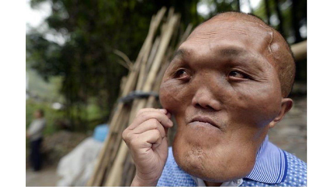 La terrible historia del chino apodado cara de alien