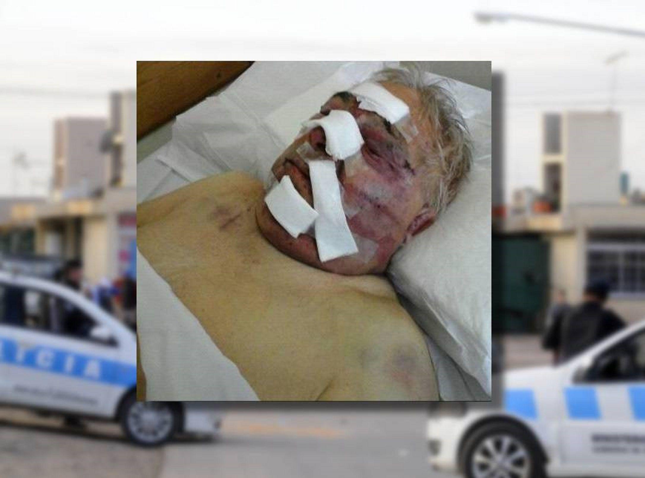 Salvaje asalto a un jubilado: lo golpearon con un fierro hasta dejarlo inconsciente