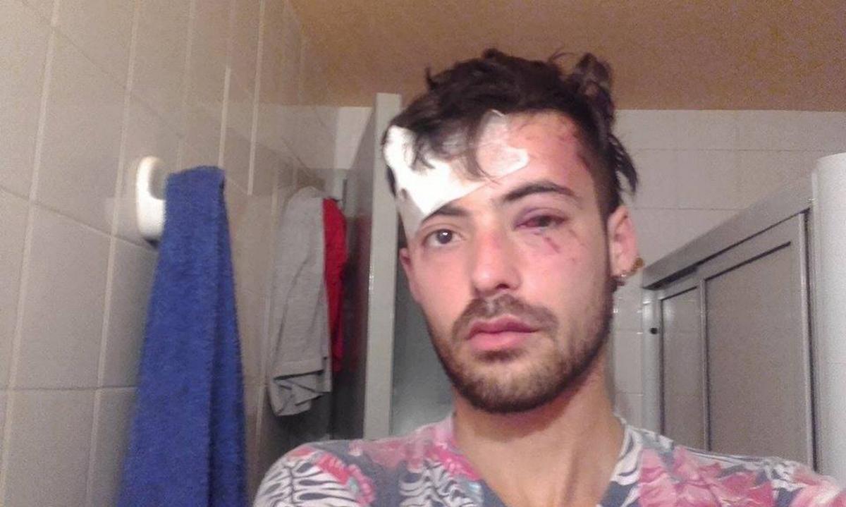 Un joven fue salvajemente golpeado por dar a conocer su orientación sexual