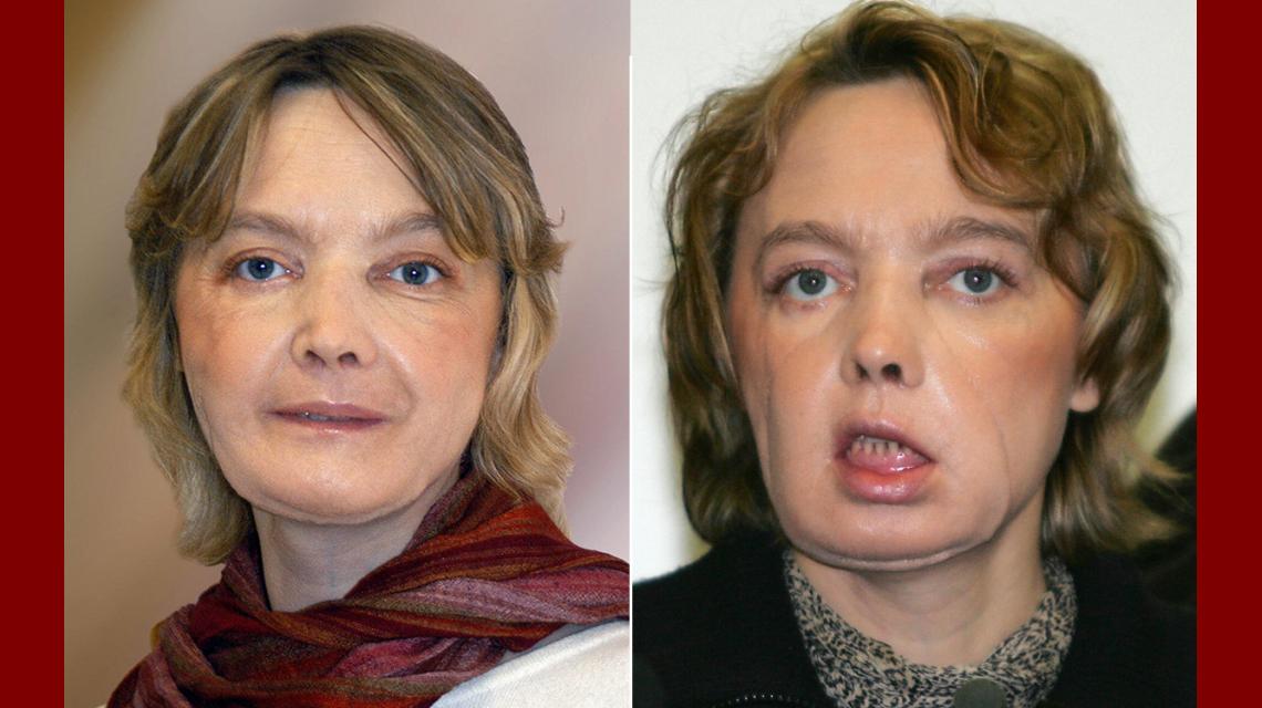 A los 49 años, murió la mujer que recibió el primer trasplante de cara del mundo